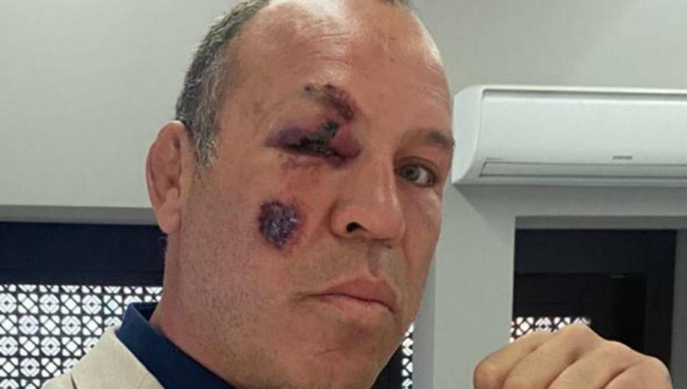 Lutador de MMA  Wanderlei Silva é atropelado no centro de Curitiba